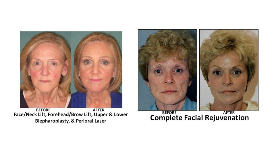 For Facelift, What's The Magic Number?